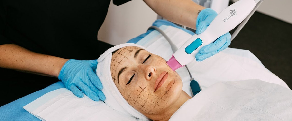 Thermage FLX treatment 02