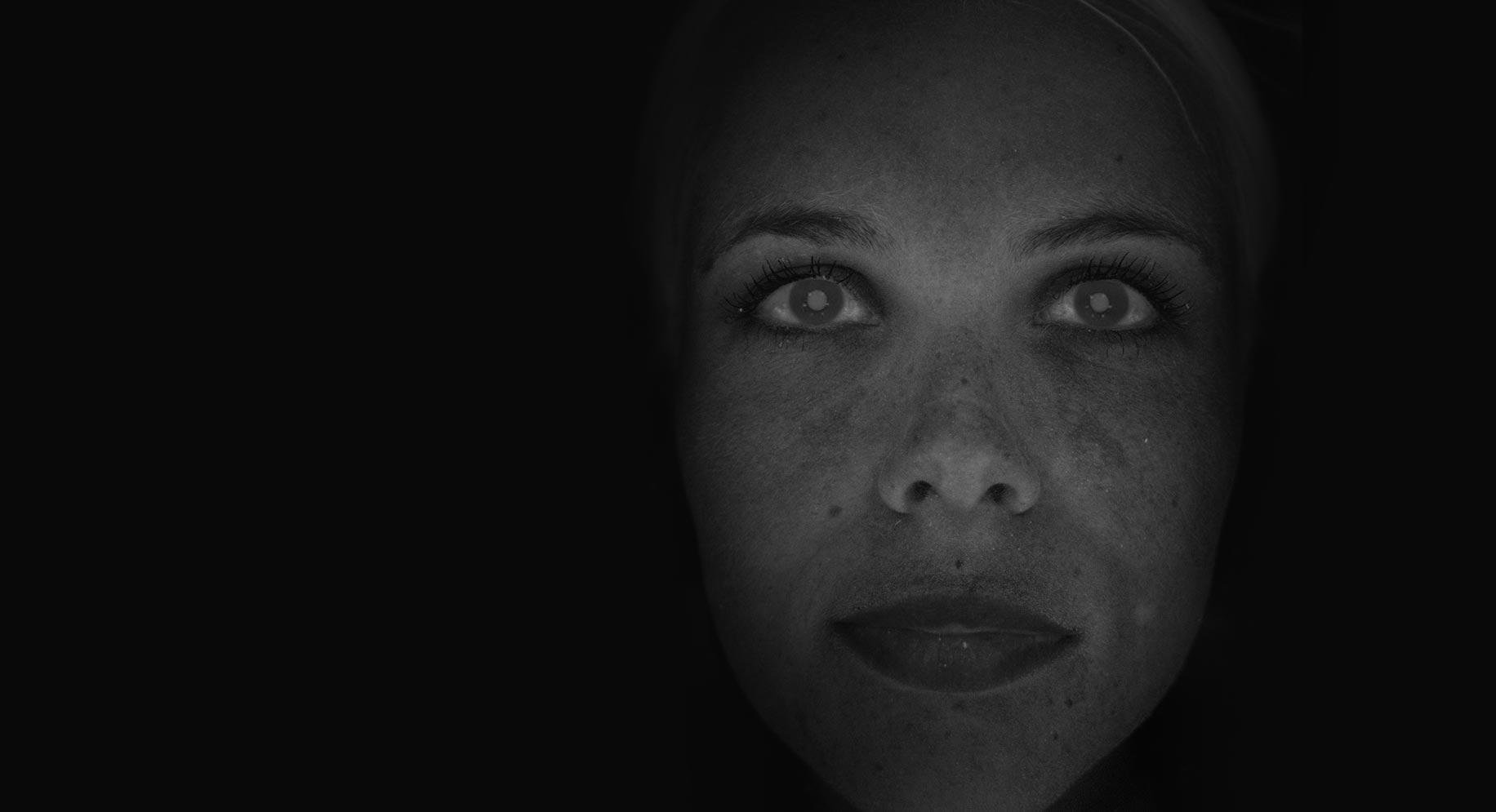 | Observ Skin Analysis | 18
