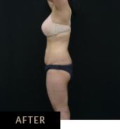 CLATUU Alpha fat freezing, patient 01 after treatment, Skin Confidence Brisbane