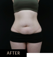 CLATUU Alpha tummy treatment before & after, patient 02 after treatment