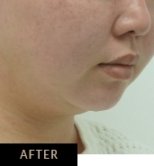 Skin Confidence patient after CLATUU Alpha treatment for double chin, angle view