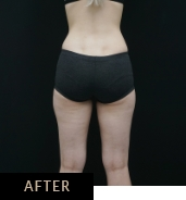 CLATUU Alpha fat freezing, patient 04 after treatment on thighs