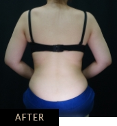 CLATUU Alpha cryolipolysis for bra line, patient 05 after treatment