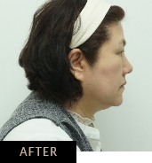Double chin treatment with CLATUU Alpha fat freezing, patient 06 after treatment at Skin Confidence Brisbane