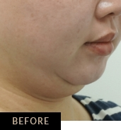 Skin Confidence patient before CLATUU Alpha treatment for double chin, angle view