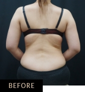 CLATUU Alpha cryolipolysis for bra line, patient 05 before treatment