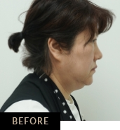 Double chin treatment with CLATUU Alpha fat freezing, patient 06 before treatment at Skin Confidence Brisbane